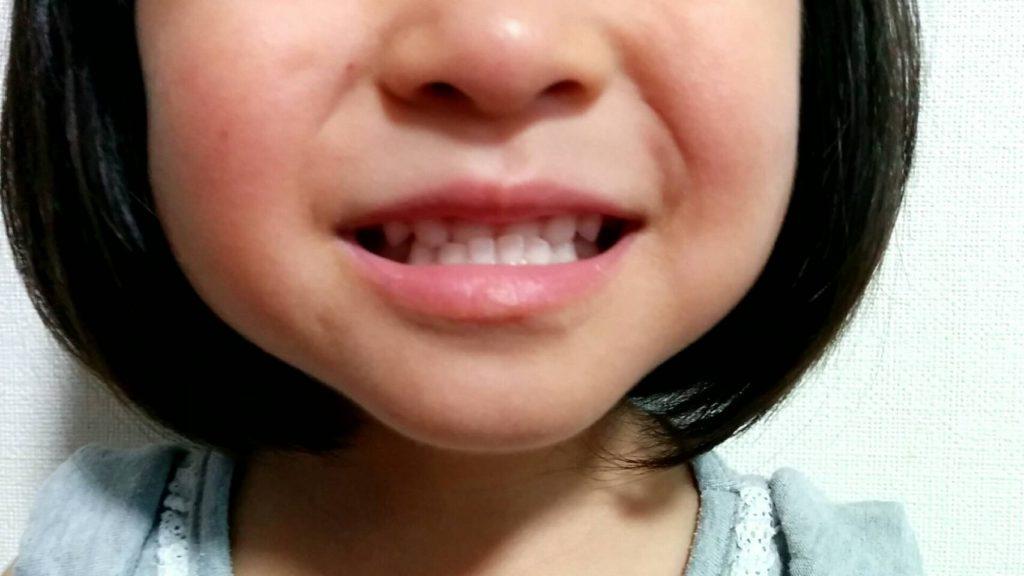 次女の歯並び